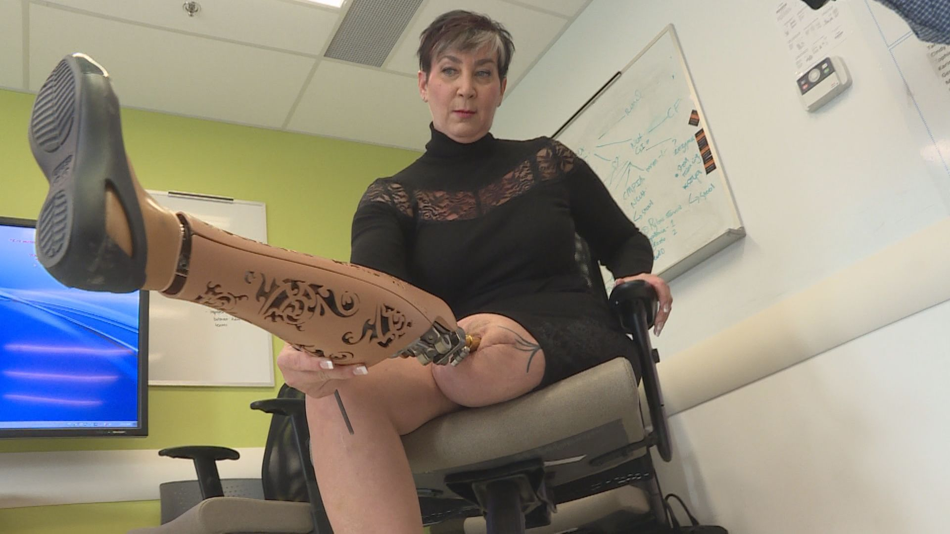 Montreal Woman Gets First Osseointegration Surgery In Canada Montreal Globalnews Ca