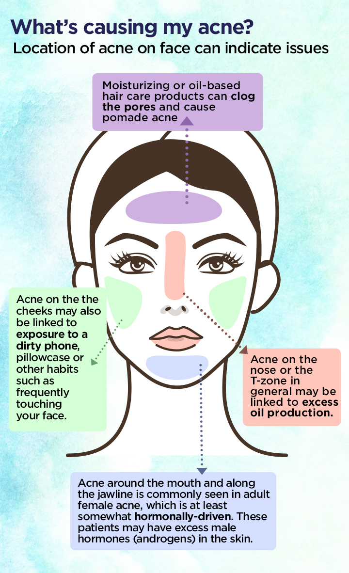 Why You Keep Breaking Out In Certain Spots On Your Face National