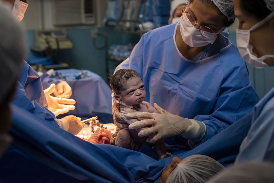 Brazilian photographer Rodrigo Kunstmann captured the hilarious moment a feisty baby stared down doctors right after her birth.