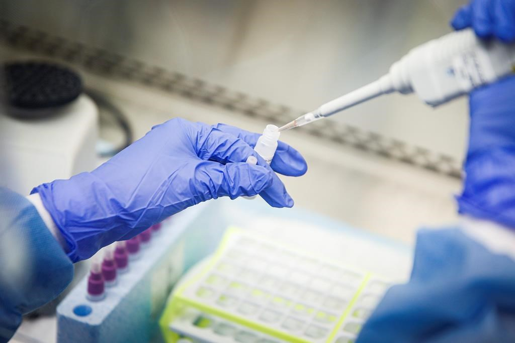 The majority of the 99 active coronavirus cases in Saskatchewan — 85 — are in the far north region.
