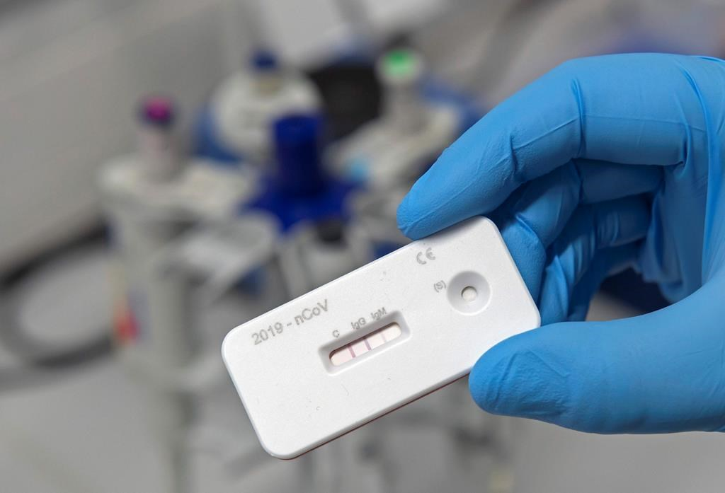 A scientist presents an antibody test for coronavirus in a laboratory of the Leibniz Institute of Photonic Technology (Leibniz IPHT) at the InfectoGnostics research campus in Jena, Germany, Friday, April 3, 2020. An international team of researchers with the participation of the Jena Leibniz Institute of Photonic Technology (Leibniz IPHT) has developed a rapid antibody test for the new coronavirus. By means of a blood sample, the test shows within ten minutes whether a person is acutely infected with the SARS-CoV-2 virus (IgM antibody) or already immune to it (IgG antibody).