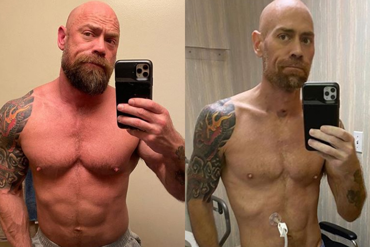 Mike Schultz, 43, is shown before (left) and after his COVID-19 diagnosis.