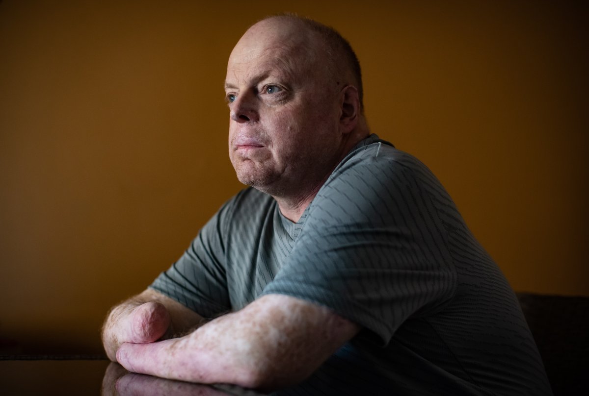 Rick Thompson, who had all of his limbs amputated after contracting bacterial meningitis and septic shock in 2015, poses for a photograph in Coquitlam, B.C., on Monday, March 9, 2020. Thompson moved to London, Ont., from British Columbia in April to prepare for double-hand transplant surgery, which involves medical and psychological tests, as well as finding a donor.