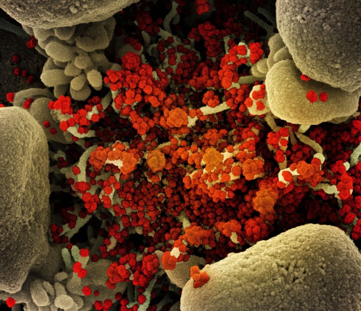 Colourized scanning electron micrograph of an apoptotic cell (tan) heavily infected with SARS-COV-2 virus particles (orange), isolated from a patient sample. Image captured at the NIAID Integrated Research Facility (IRF) in Fort Detrick, Md.