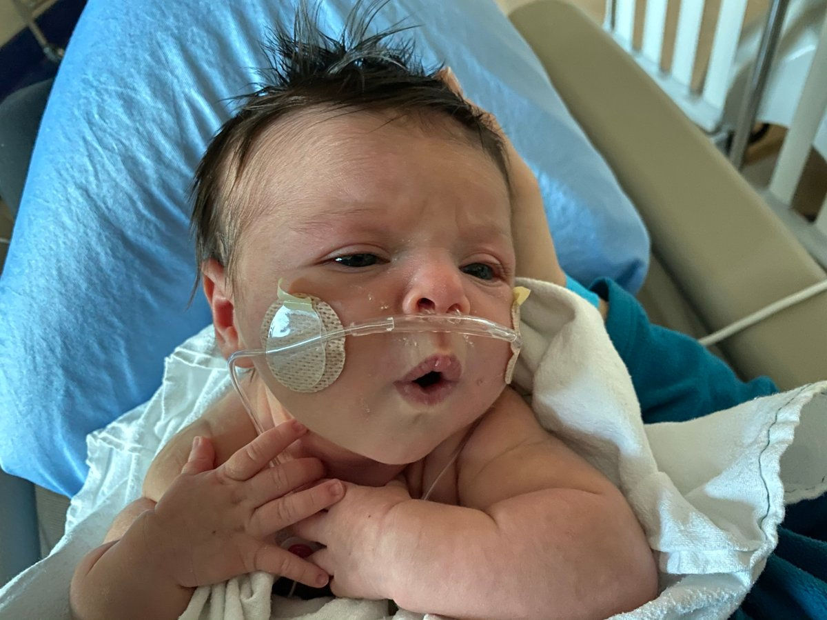 Calgary newborn Nora Forrest spent four days in the intensive care unit after contracting COVID-19 .